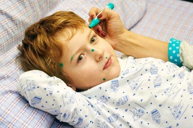 Чем лечить ветрянку у детей кроме зеленки: 6 самых эффективных средств