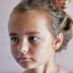Краснуха у детей: симптомы, лечение и профилактика